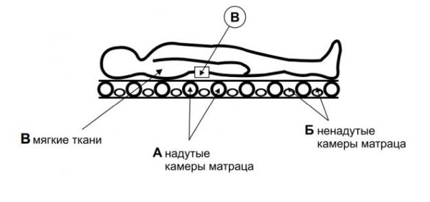 Схема работы противопролежневого матраса